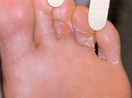 Athlete's foot is a fungal infection common during rains